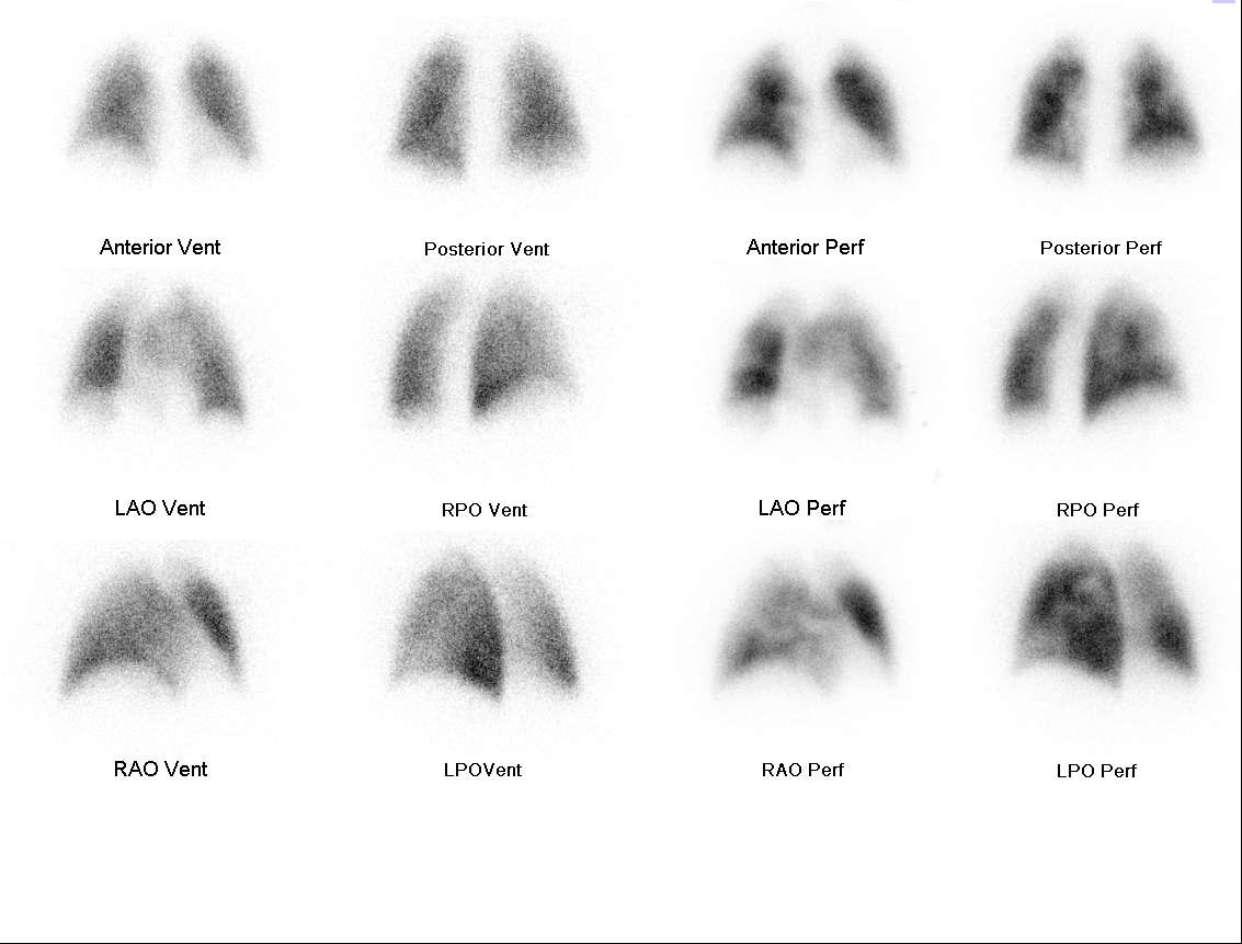 A Lung Scan (with mini-lecture)   somecasesplusmore
