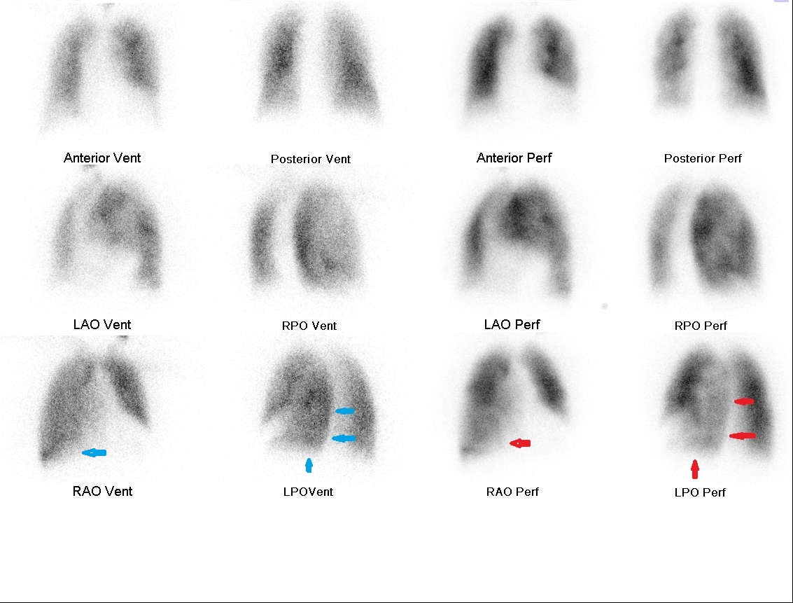 High Probability Lung Scan   somecasesplusmore