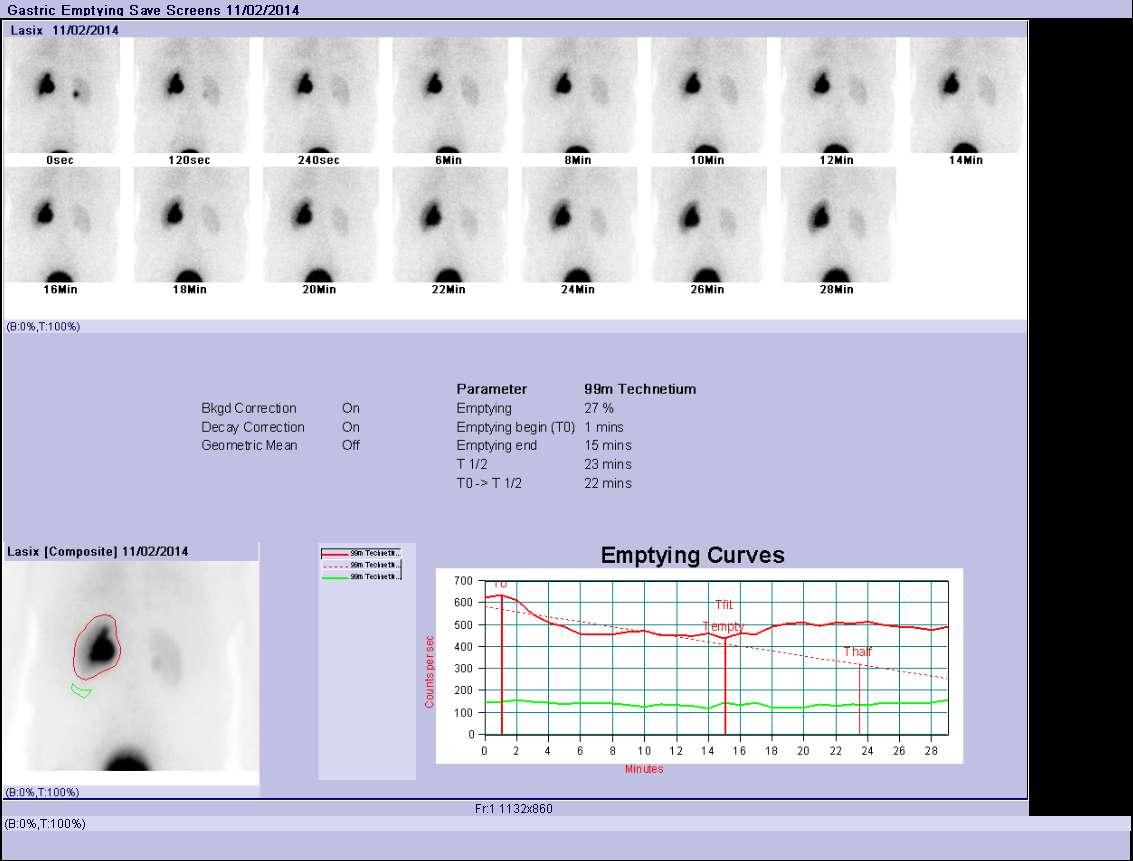 Lasix renal scan