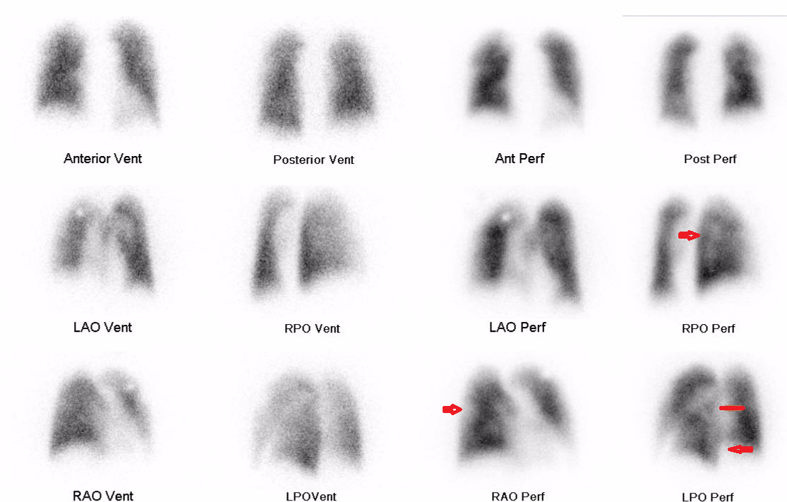 High probility lung scan, low probabilty ethnicity   somecasesplusmore